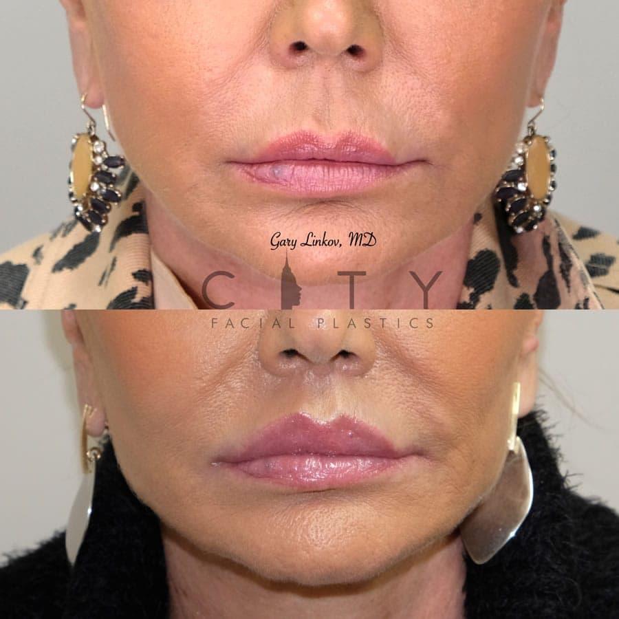 Elelyft  New York Facial Plastic Surgeon Doctor Gary Linkov