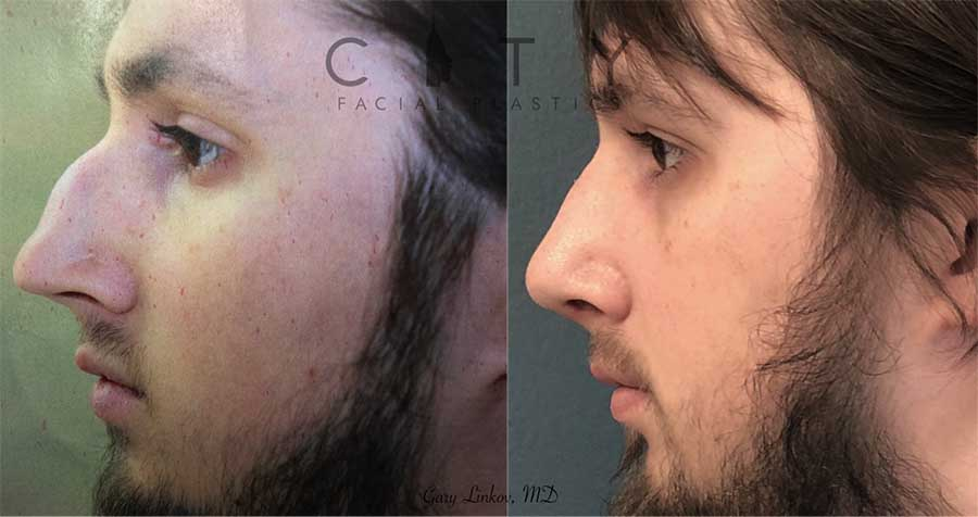 Rhinoplasty Nose Job Surgery