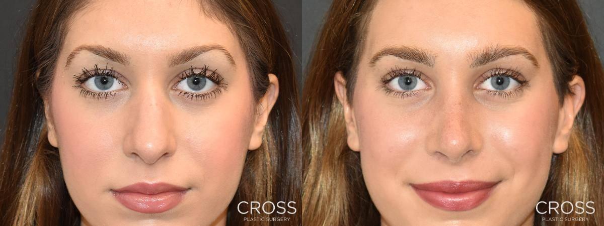 Cross Plastic Surgery