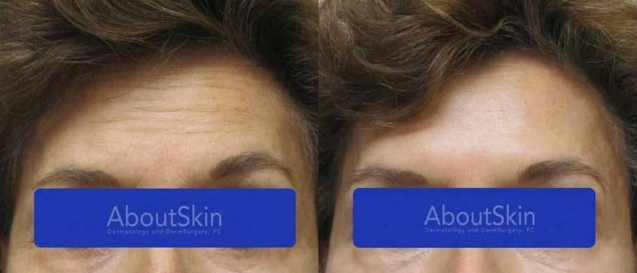 AboutSkin Dermatology and DermSurgery