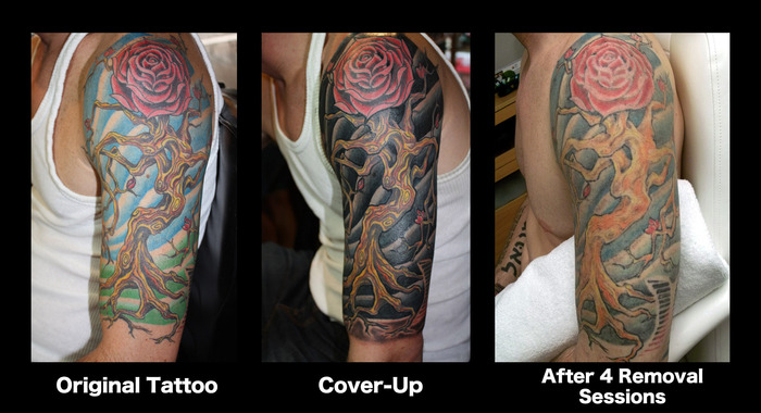 "Tillman In Three Stages Of ""Tattoo Regret"""