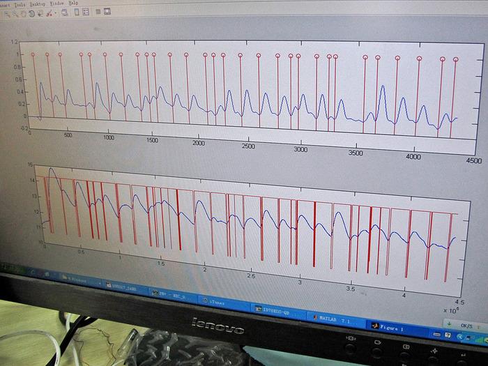 Music sync algorithm