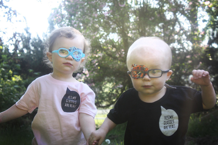 These two were both born with a congenital cataract.