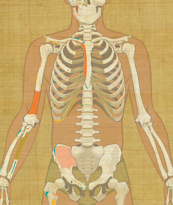 Example of the anterior thorax game board with muscle attachments.
