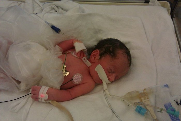 This is Sophia on the day she was born March 25, 2010