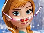 Anna Nose Problems