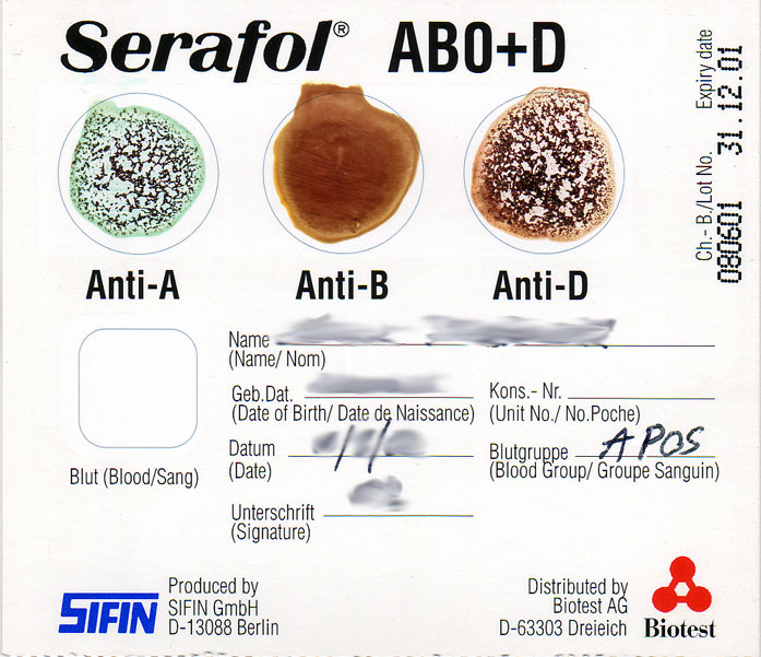 A completed blood typing test card. Three circular fields appear at the top of the card, labelled from left to right: Anti-A, Anti-B, and Anti-D. Blood clotting has occurred in the fields Anti-A and Anti-D, while no clotting occurred in the Anti-B field. Below the circles, the card is filled out with patient information such as name and date of birth, and the blood group result, which is A positive on this card.
