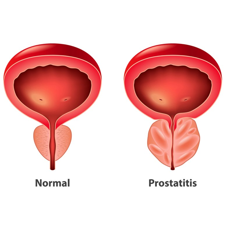 infertilidad bacteriana por prostatitis