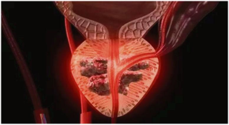 ¿Qué significa la próstata con video adenoma?