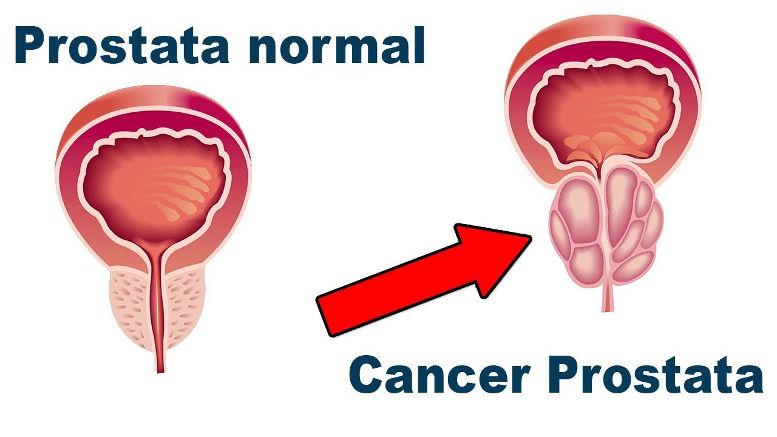la terapia de protones es mejor que la radiación para el cáncer de próstata