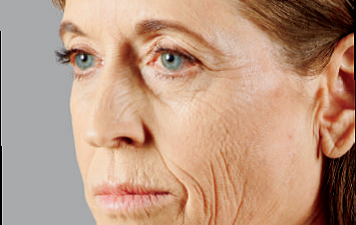 wrinkles microbotox