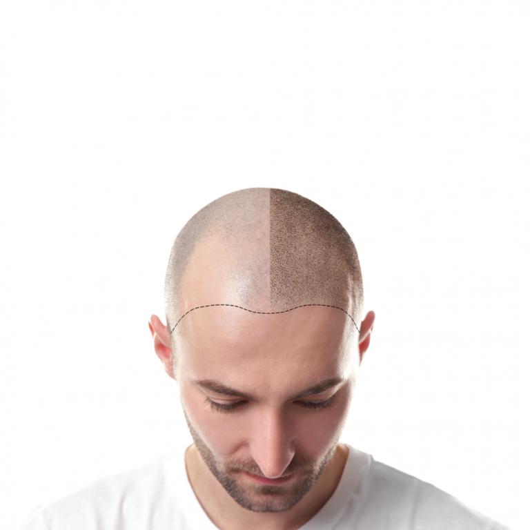 hair-neograft-02
