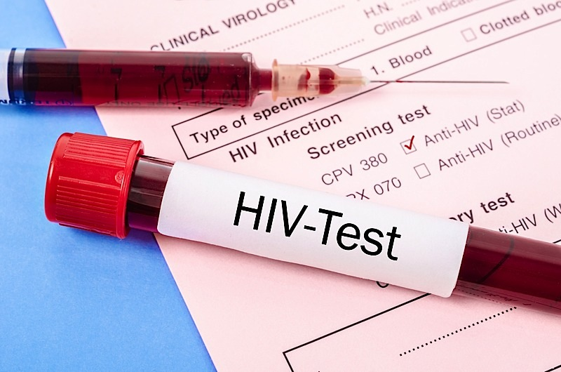 'Outbreak' Of HIV, Syphilis In Minnesota