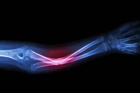 New hampshire broken bones lawyer