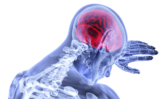 When Can I Request Compensation for A New York Spinal Cord Injury?