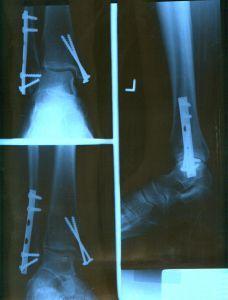 Nh personal injury