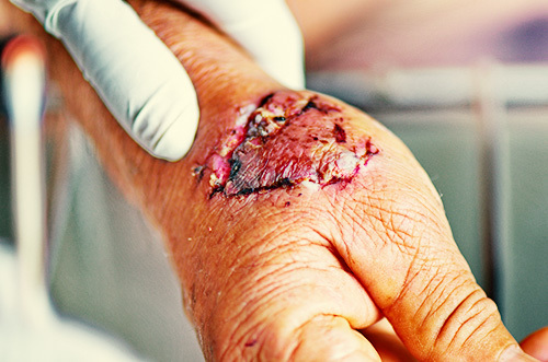 infected dog bite as an example of great bodily injury