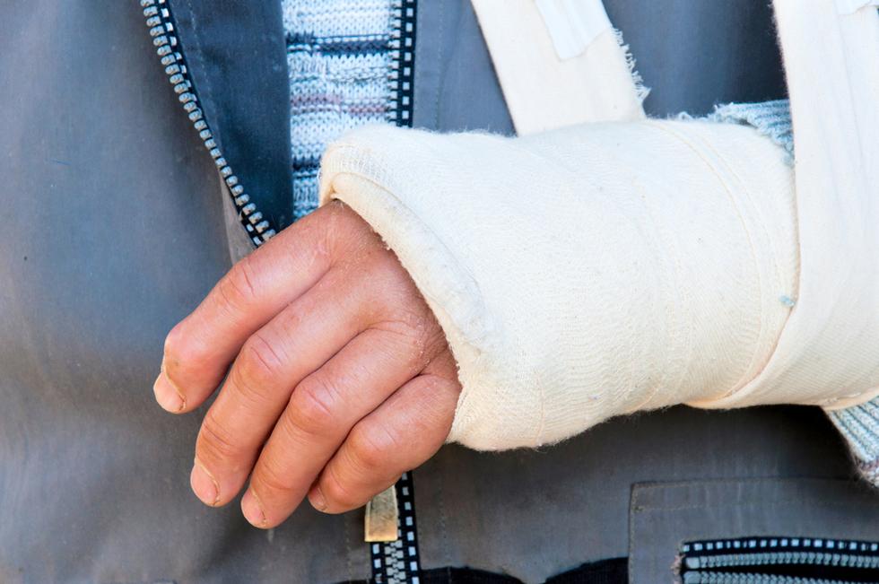 Broken arm aggbat