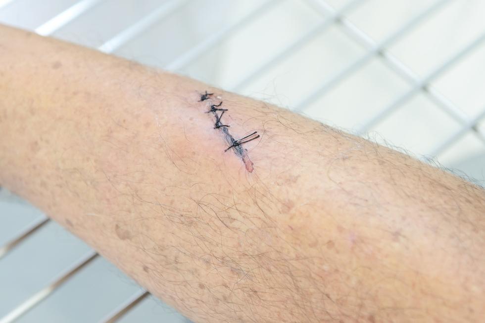 Stitches_aggbat