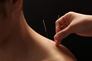 Acupuncture-optimized