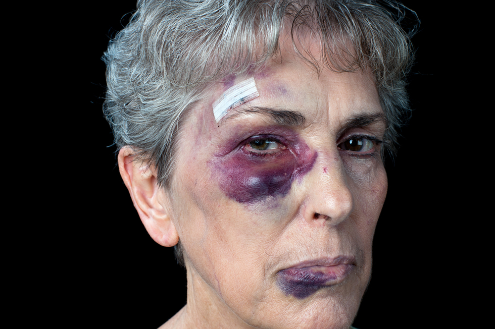 elderly woman with stitches and bruised face