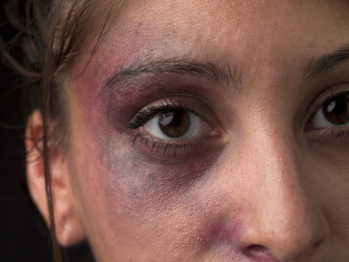 young women with bruises around her eye