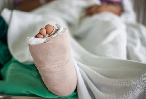 close up on foot covered in cast, person lying in hospital bed