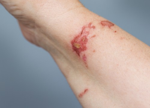 Women's shin covered in chemical burns