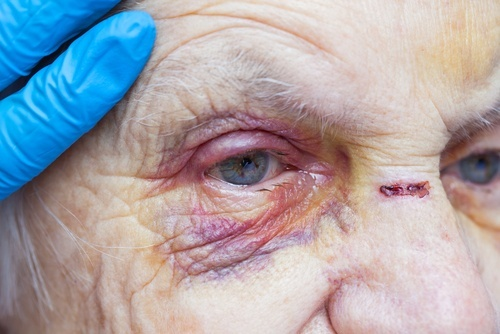 Elderly woman with bruises on her face and a hand in a latex glove gently examining her