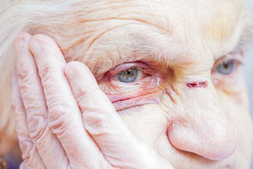 elderly person with black eye