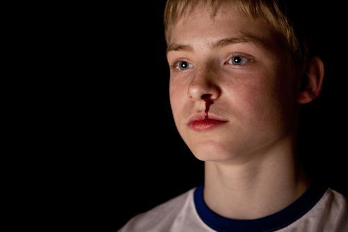 young boy bleeding from nose