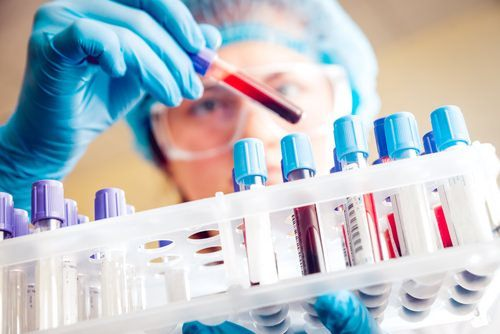 blood tests in a lab