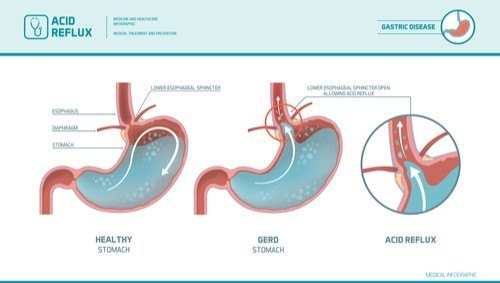 gerd acid reflux diagram california dui attorneys