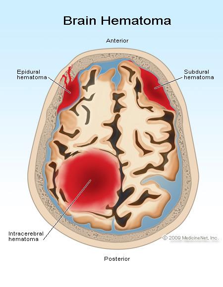 Brain hematoma