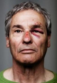 Img-elder-abuse-face