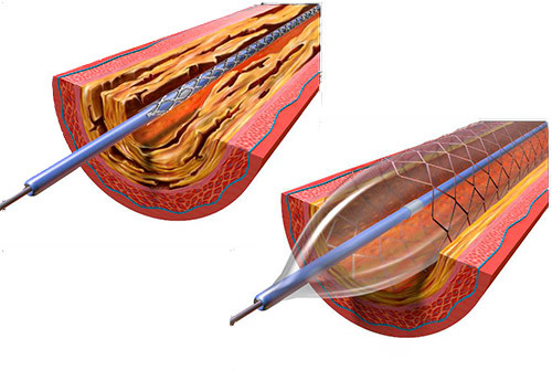 illustration of a stent
