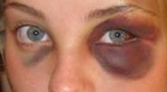 Img-black-eye