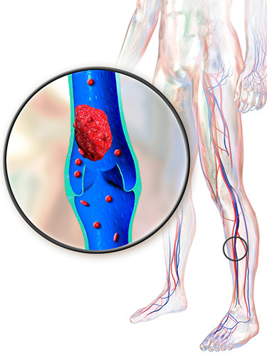 illustration of deep vein thrombosis