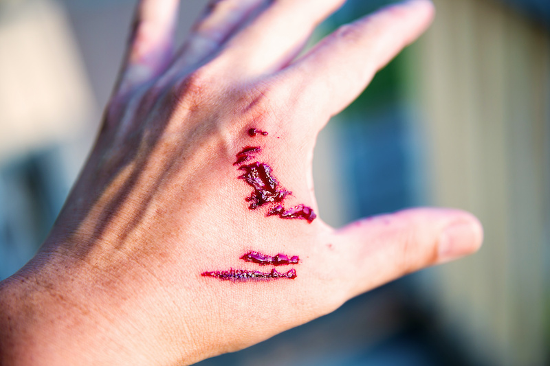 Dog Bite on Hand Personal Injury