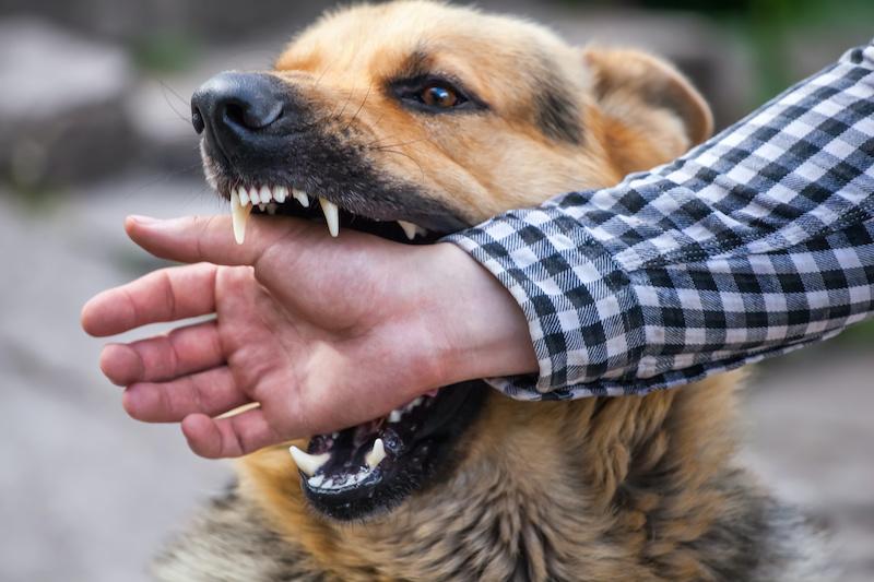 Dog Biting Human Hand