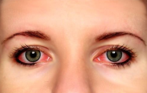 How to get rid of red bloodshot eyes 300x190