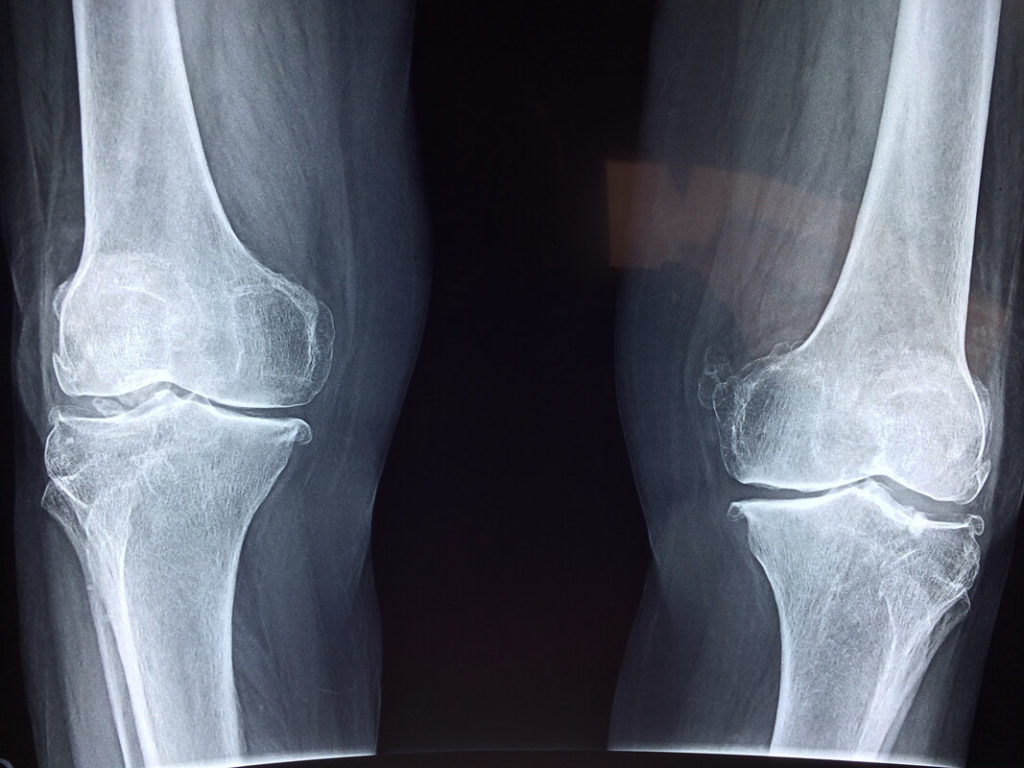 Effects of catastrophic knee injuries