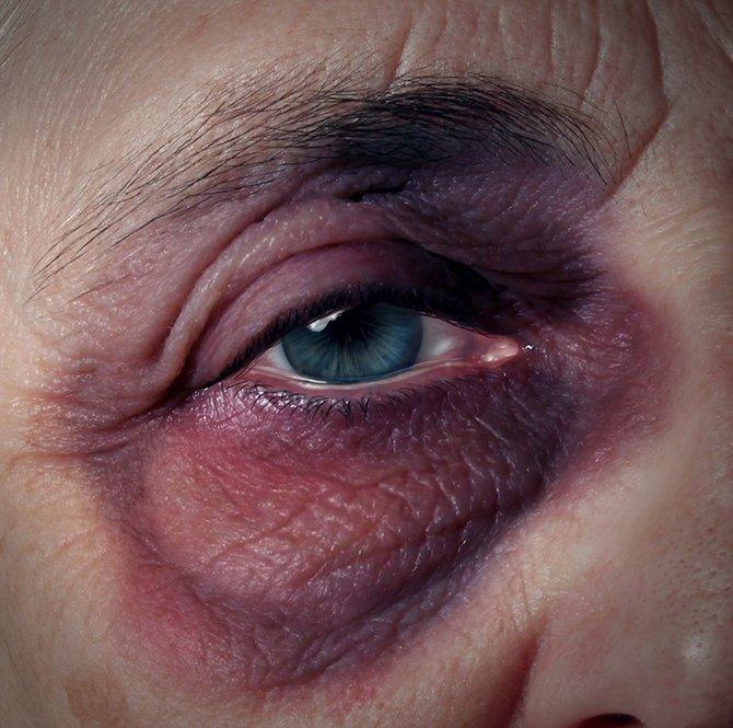Nursing Home Abuse Goldberg Law