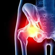Hip implants and soft tissue damage