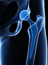 Bellwether Hip Implant Case Results in $11M Jury Award