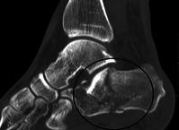 calcaneus fracture pedestrian accident