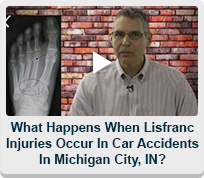 what-happens-when-lisfranc-injuries-occur