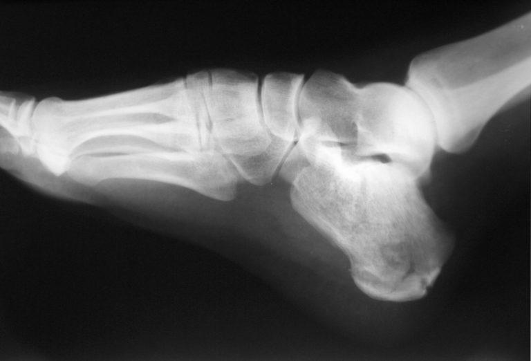 Bone fracture 768x522