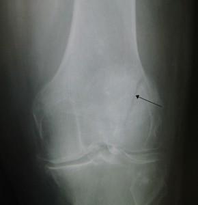 Patella fracture 21 290x300