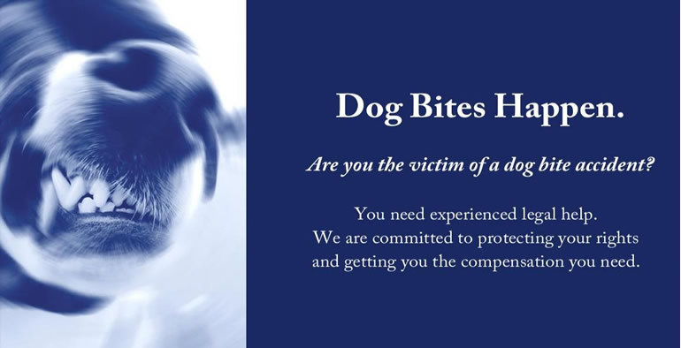 Scottsdale arizona dog bite lawyers